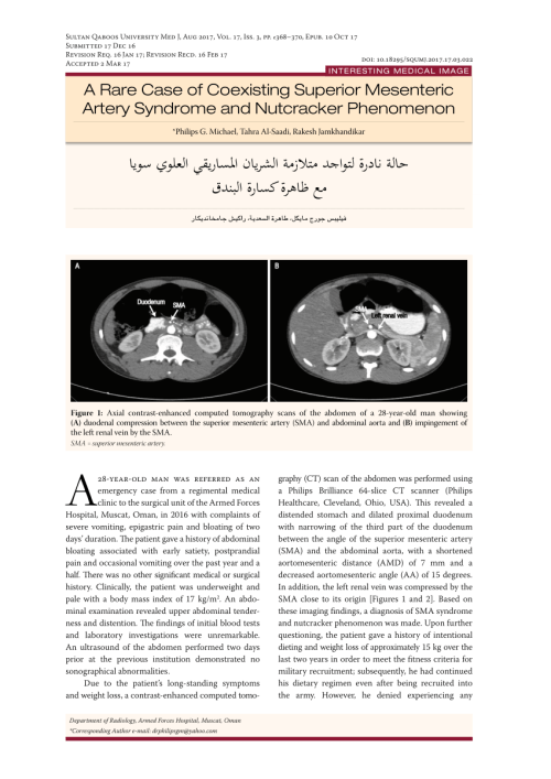 small resolution of axial ct section demonstrating the anatomy of sma syndrome download scientific diagram