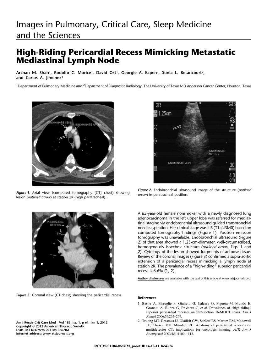 (PDF) High-Riding Pericardial Recess Mimicking Metastatic