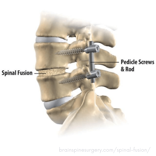Living with Degenerative Disc Disease - An Update ...