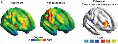 small resolution of image shows brain scans from the study