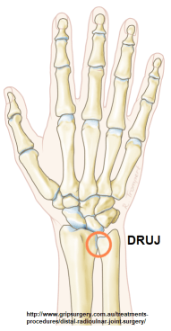 Sprained Your Wrist? Be Aware of TFCC Injury ! - REHAB FOR A BETTER LIFE