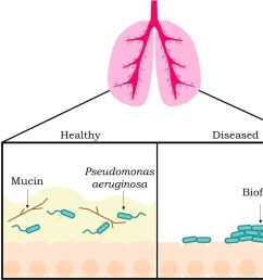 figure 2 mucus disrupts biofilm formation in healthy individuals the left box the bacterium p aeruginosa blue cylindrical objects with tails can  [ 1474 x 1112 Pixel ]