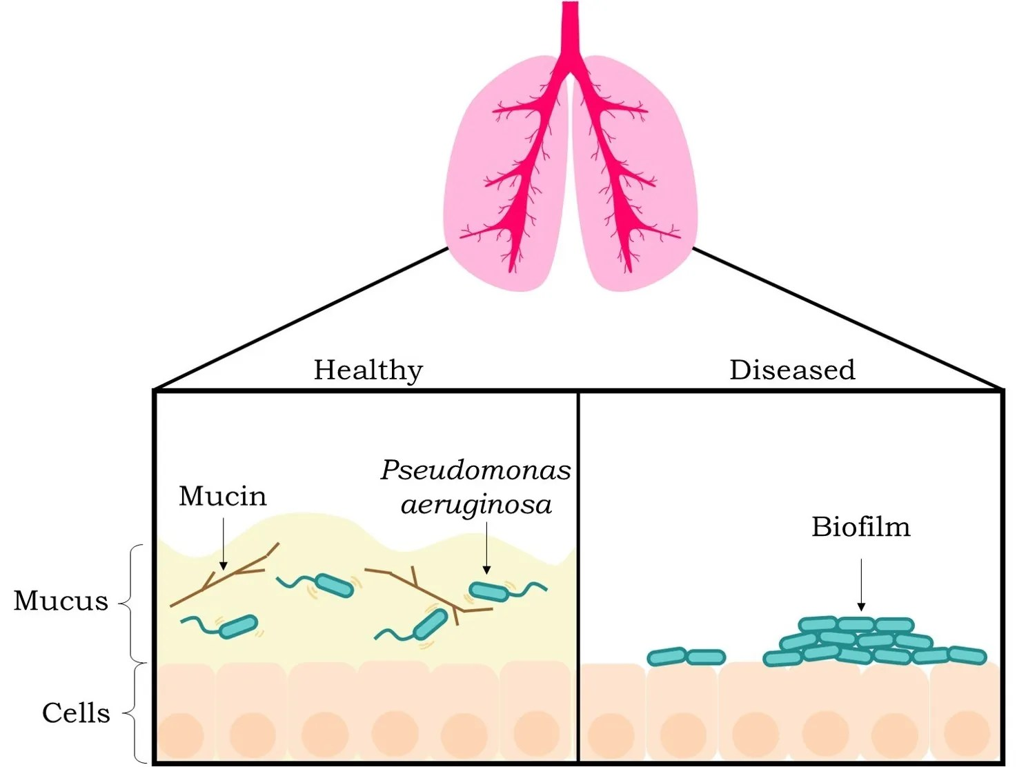hight resolution of figure 2 mucus disrupts biofilm formation in healthy individuals the left box the bacterium p aeruginosa blue cylindrical objects with tails can