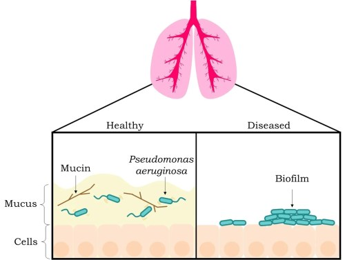 small resolution of figure 2 mucus disrupts biofilm formation in healthy individuals the left box the bacterium p aeruginosa blue cylindrical objects with tails can