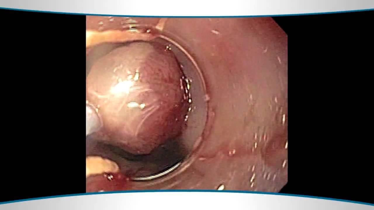 New Barretts Esophagus Treatments - YouTube