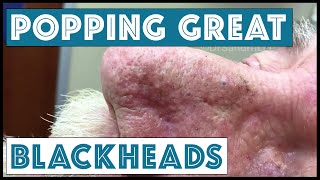 Popping GREAT blackheads after Mohs skin cancer surgery