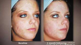 Treating burn scars with CO2 Laser, Active FX, Deep FX
