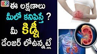 Symptoms Of Kidney Problems | ఈ 10 లక్షణాలు ఉంటే మీ కిడ్నీ డేంజర్ లో ఉనట్టే | MSR TV