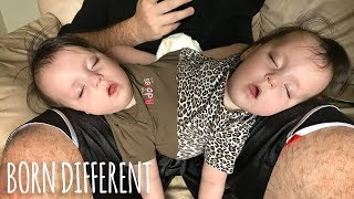Conjoined Twins Are A Medical Miracle | BORN DIFFERENT