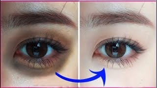 How to Remove Dark Circles at Home Remedies (100% Results)