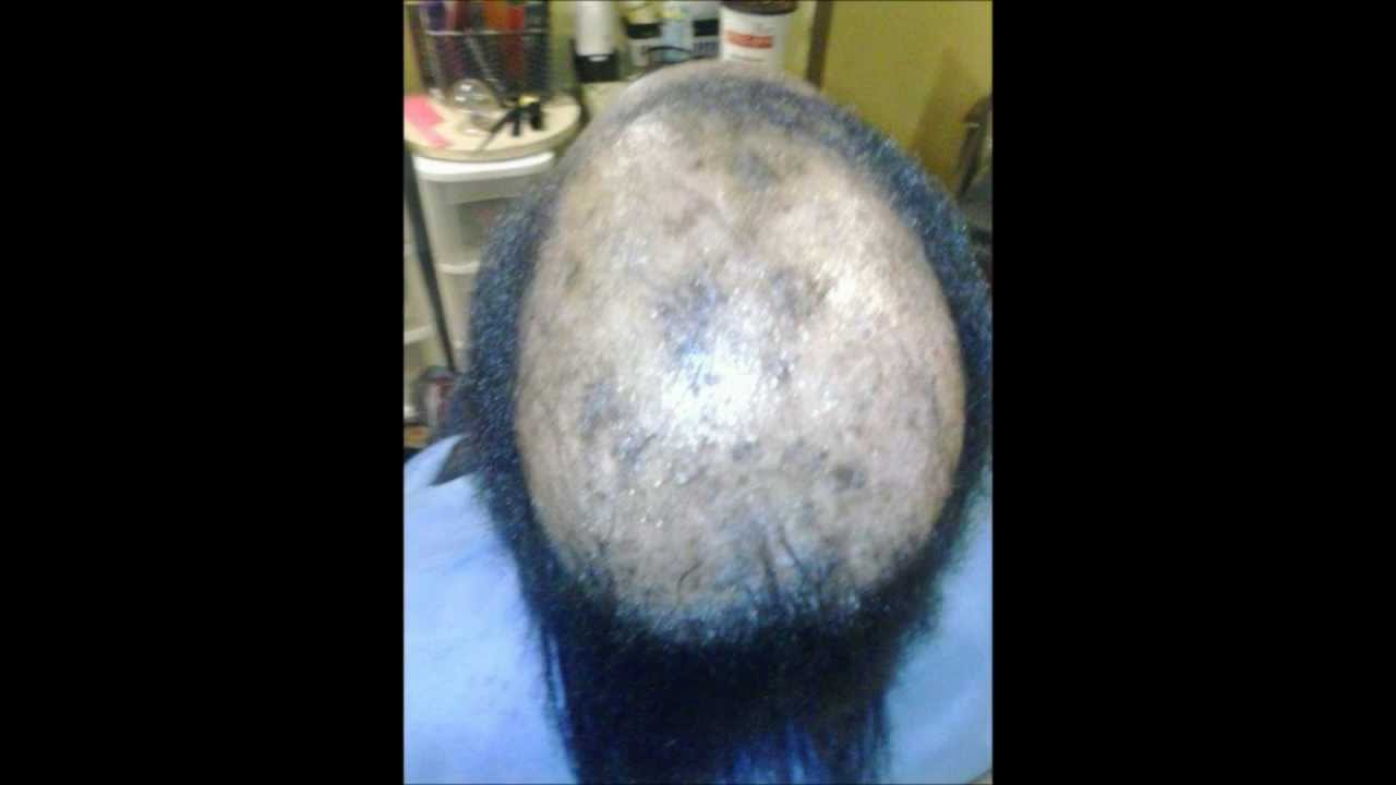 how to braid a bald head  YouTube