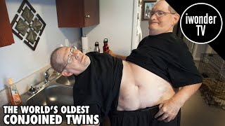 The Worlds Oldest Conjoined Twins Ronnie and Donnie Galyon