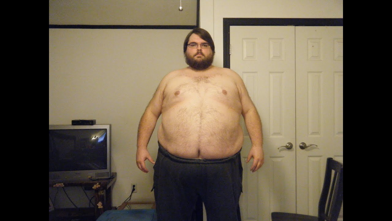 500lb Obese Man Losing Weight  YouTube