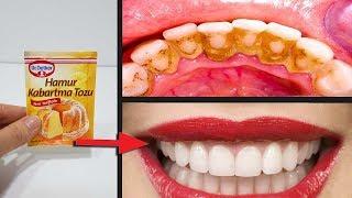 Tüm Kadınlar Böyle Dişlere Sahip Olmak İstiyor - 2 Dakikada Sararmış Diş Beyazlatma