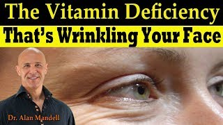 The Vitamin Deficiency That's Wrinkling Your Face (Linked to Low Bone Mass) - Dr Alan Mandell, DC