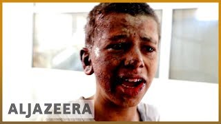 🇾🇪 'Where are my brothers?' pleads Yemen school bus attack survivor | Al Jazeera English