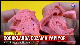 Dr. Selda Yıldırım, slime cilde zararları
