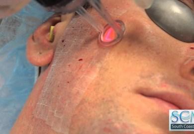 Acne Scar Repair Surgery