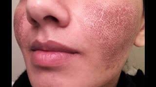 BEFORE & AFTER my Fraxel laser experience for acne spots & large pores - GONE BAD