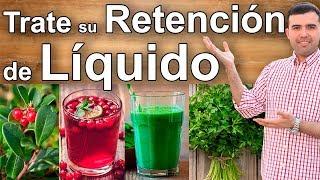 ELIMINA LA RETENCION DE LIQUIDO - Remedios Caseros Alimentos y Suplementos Para Bajar la Hinchazon