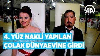 Türkiye'de 4. yüz nakli yapılan Çolak dünyaevine girdi