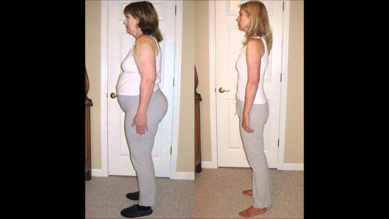 Lap Band Groupie - Before and After Lap Band Surgery ...