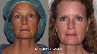Derma Health Laser Skin Resurfacing   Active FX Patient Testimony