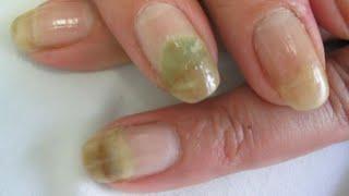 Elimina los hongos de las uñas con este remedio. super efectivo.