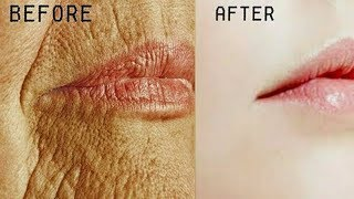 इसे सिर्फ 1 रात लगाते ही चेहरे की झुर्रियां हवा की तरह गायब हो गयीं//Remove Wrinkles Overnight