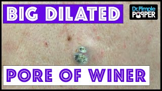 Two HUGE Dilated Pores of Winer!!