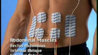 Compex Electrode Pad Placement Guide