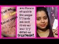 पिम्पल्स हटाने के लिए बेस्ट क्रीम और फेस वॉश | BENZOYL PEROXIDE acne treatment | 100% results