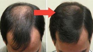 U 7 dana kako brzo trajno rasti ćelavu kosu | PRIRODNI LIJEKOVI