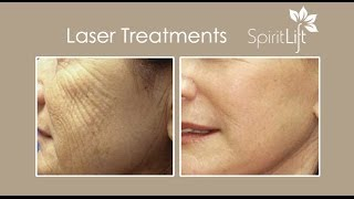 Laser Treatments | Laser Skin Resurfacing | San Diego