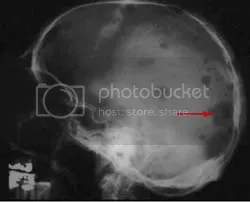 punched out lytic lesions of skull