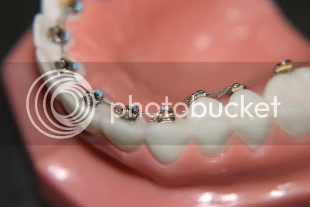 singer island orthodontics