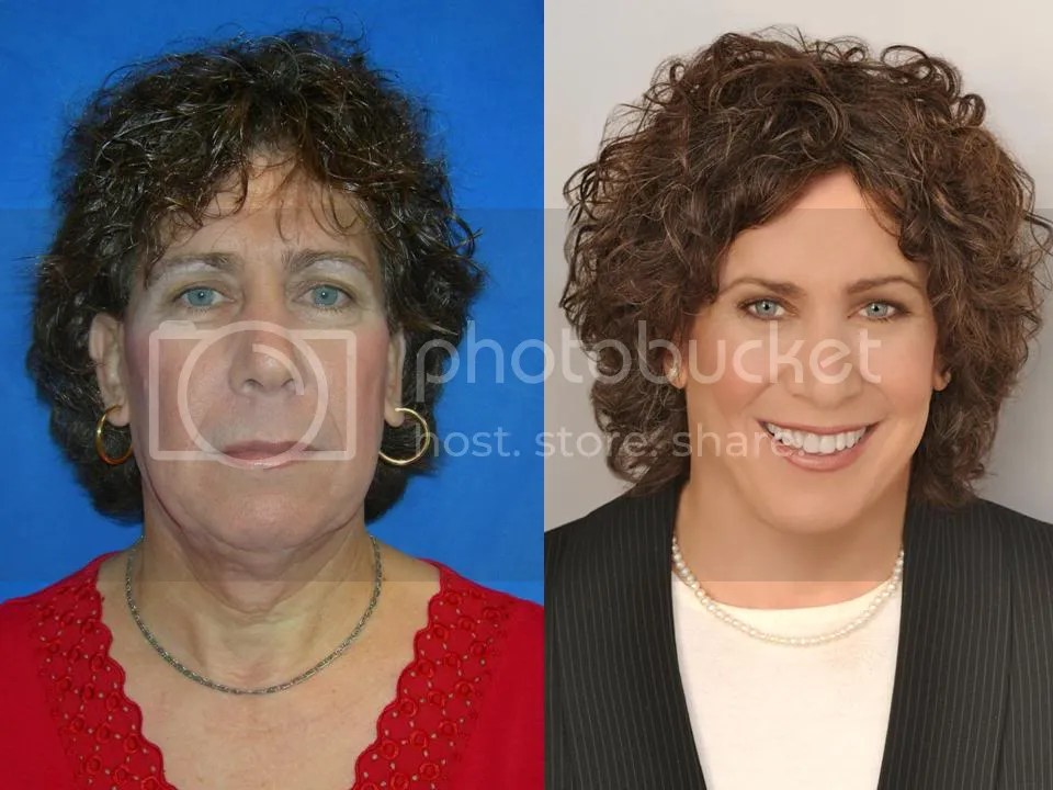 facial plastic surgery orlando