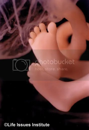 feet of an 11-week-old baby in the womb