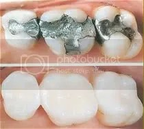 tooth colored fillings palm beach gardens