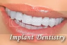 dental implants palm beach