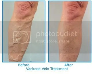 support hose for varicose veins with zippers
