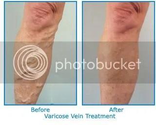 pregnancy varicose veins stockings
