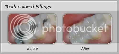 orthodontics boca raton