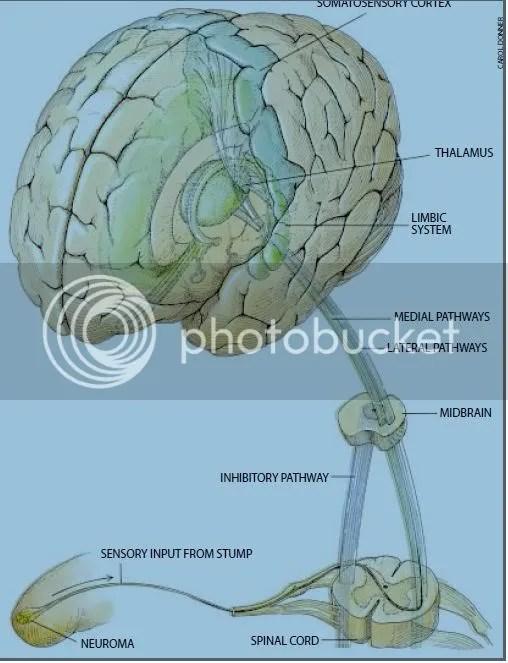 Neural pathway from neuroma to somatosensory cortex