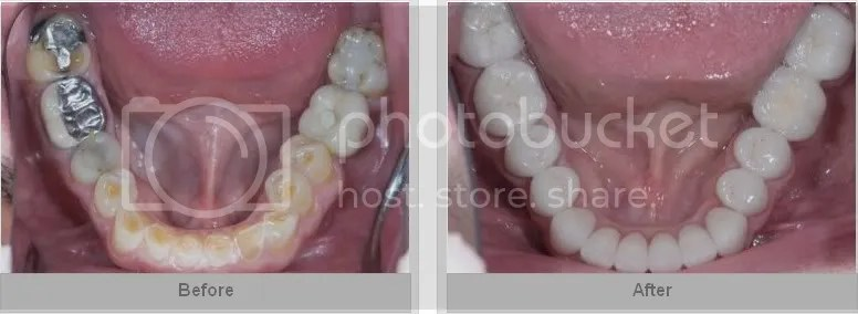 full mouth reconstruction and rehabilitation  delray beach