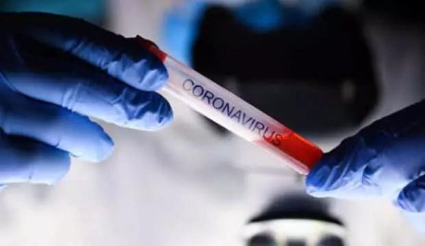 Sivas'ta, iki köy muhtarına koronavirüs soruşturması 1
