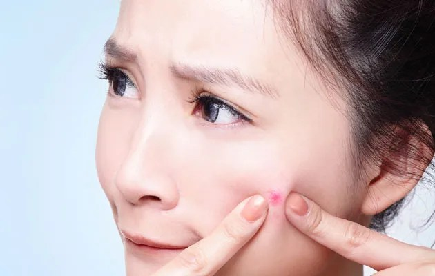 photo What-Causes-Acne-and-Pimples-in-Teenagers-Pic_zps7237e9a2.jpg