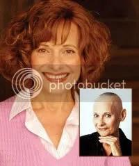 hair restoration wiki