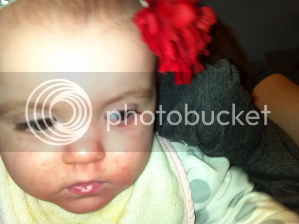 Rash after Tamiflu? What do you think? - BabyCenter