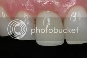 tooth whitening north palm beach